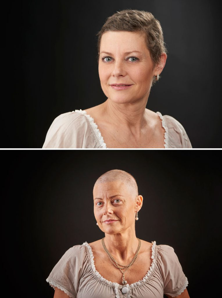 Patients taking Taxotere may find their hair loss is permanent.