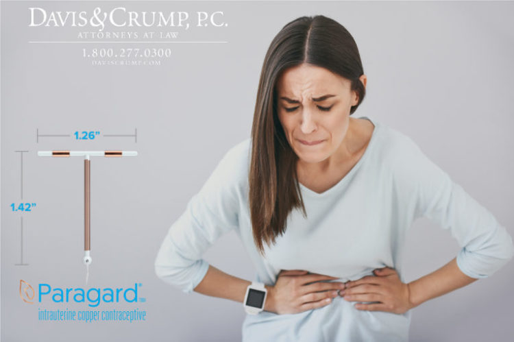 Severe Uterine injuries while using Paragard IUD.