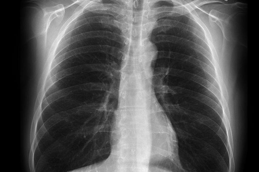 black lung xray